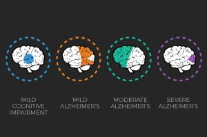 alzheimers-awareness-brain-scan