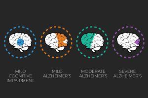 alzheimers-awareness-brain-scan